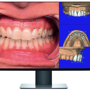 exocad display frontal smile creator CAD software