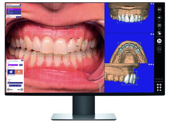 exocad display frontal smile creator CAD software