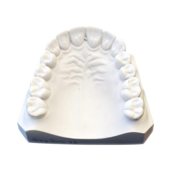 ETI Diestone Orthodontic Superstone Posterior